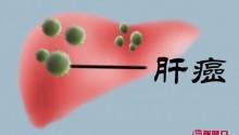 超级简单、超级有效的防肝癌方法出现了!